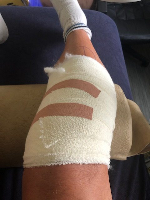 Picture of heavily bandaged knee
