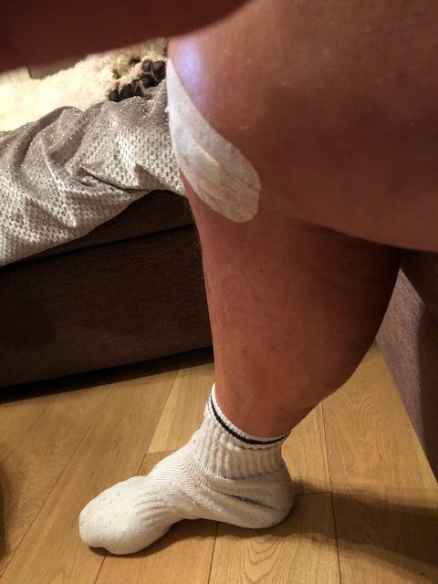 Picture of knee with small plaster